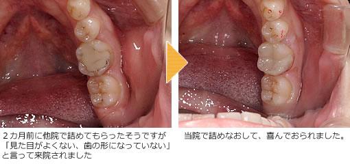 保険で白い詰め物にできるむし歯治療:CR