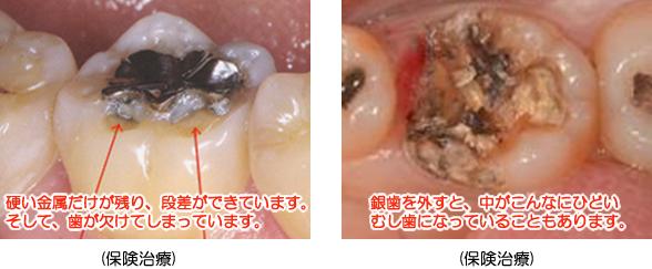 銀歯の段差とむし歯